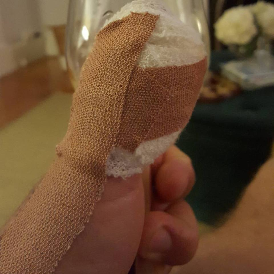 A Week Off Work-The Little Injury That Wasn't So Little
